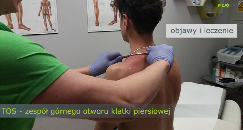 TOS (Thoracic Outlet Syndrome)