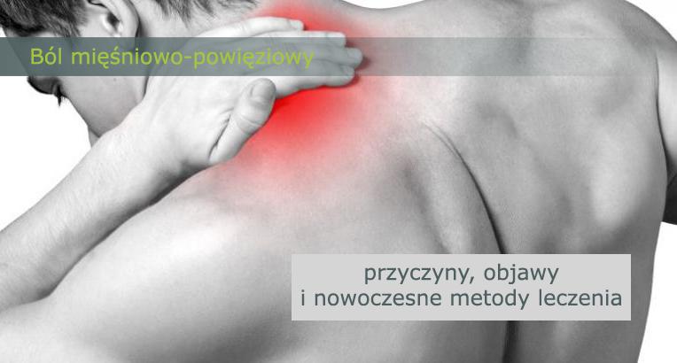 ból mięśniowo-powięziowy