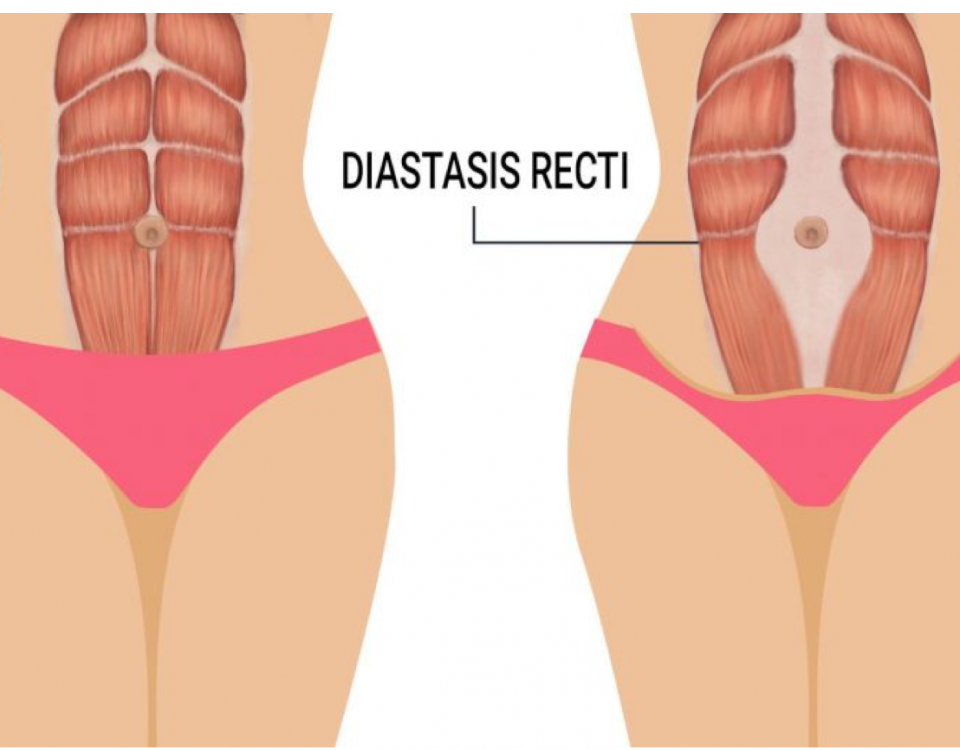Rozejście mięśnia prostego brzucha